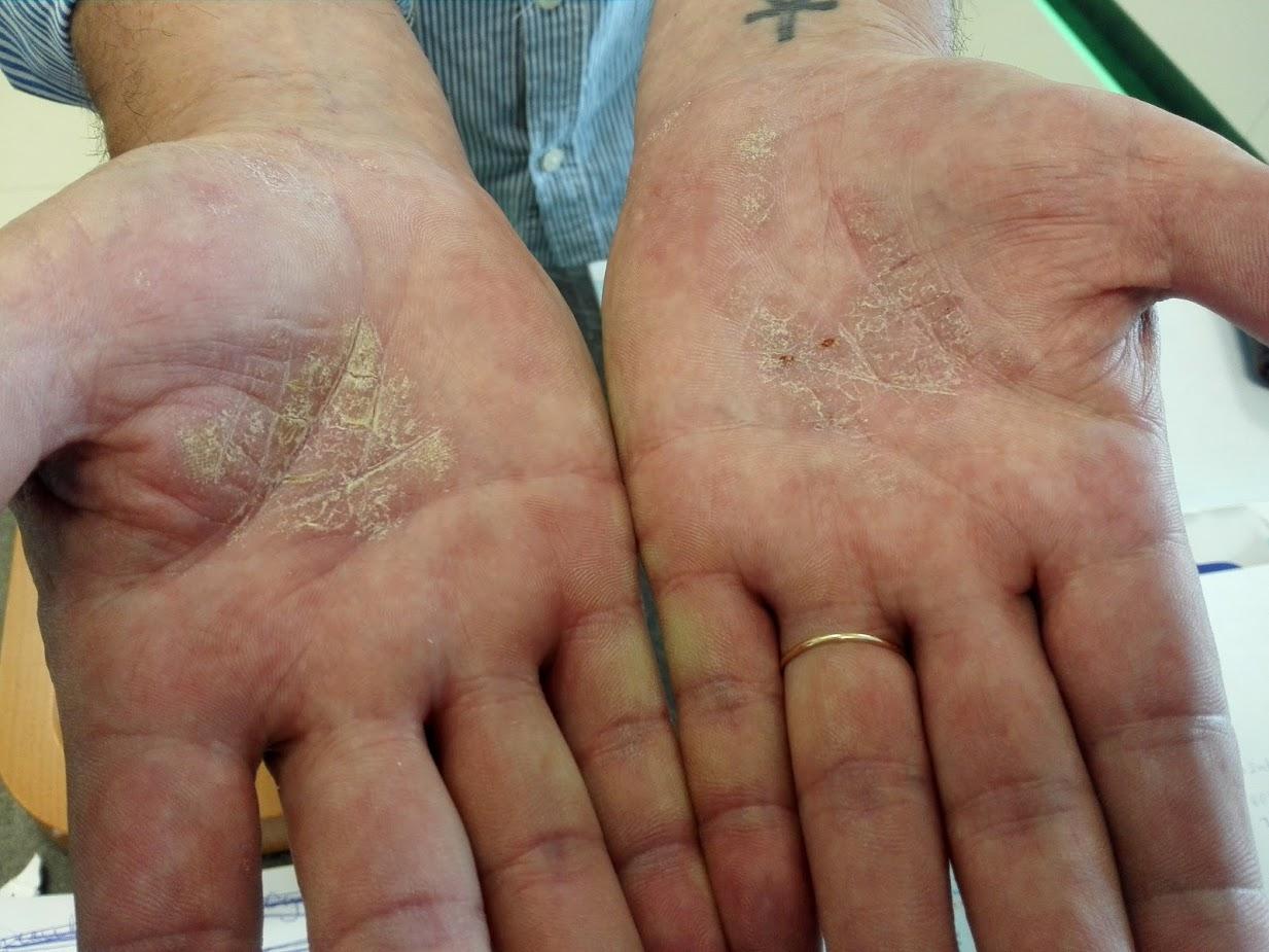 vörös foltok a lábon zúzódás után