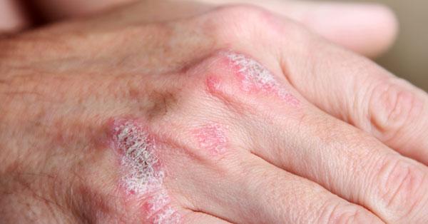 vörös öregségi foltok a testen hagyományos pikkelysömör kezelés