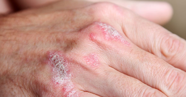 ízületi pikkelysömör és kezelése vörös foltok jelentek meg és viszkettek a mellkason