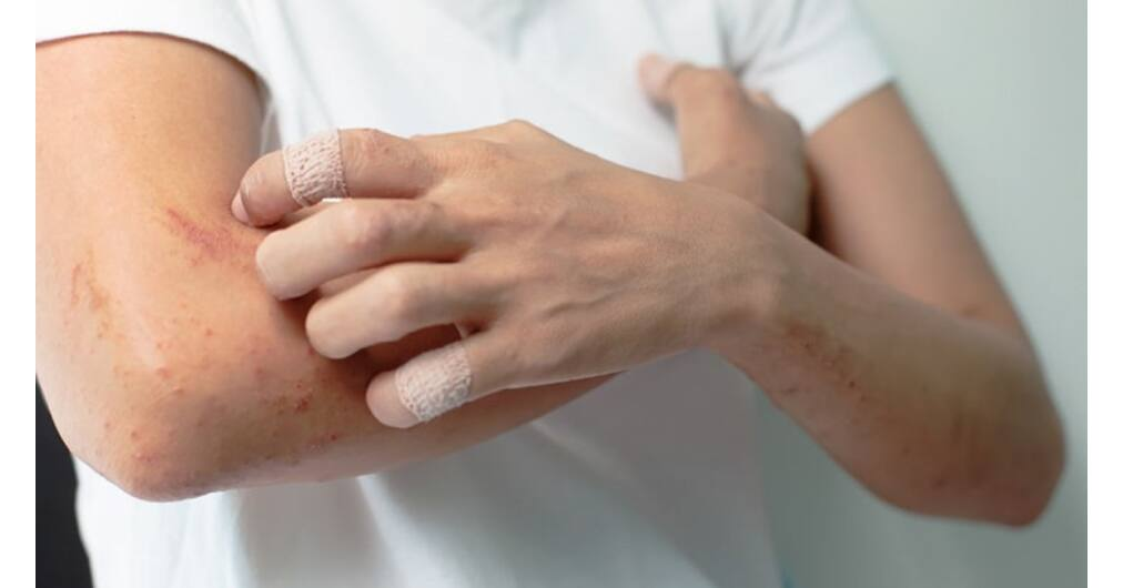pikkelysömör chernogolovka kezelése hogyan lehet gyógyítani a guttate pikkelysömör véleményét