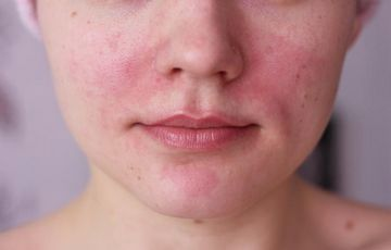 vörös foltok egy felnőtt fotó hasán zsurló pikkelysömör kezelése