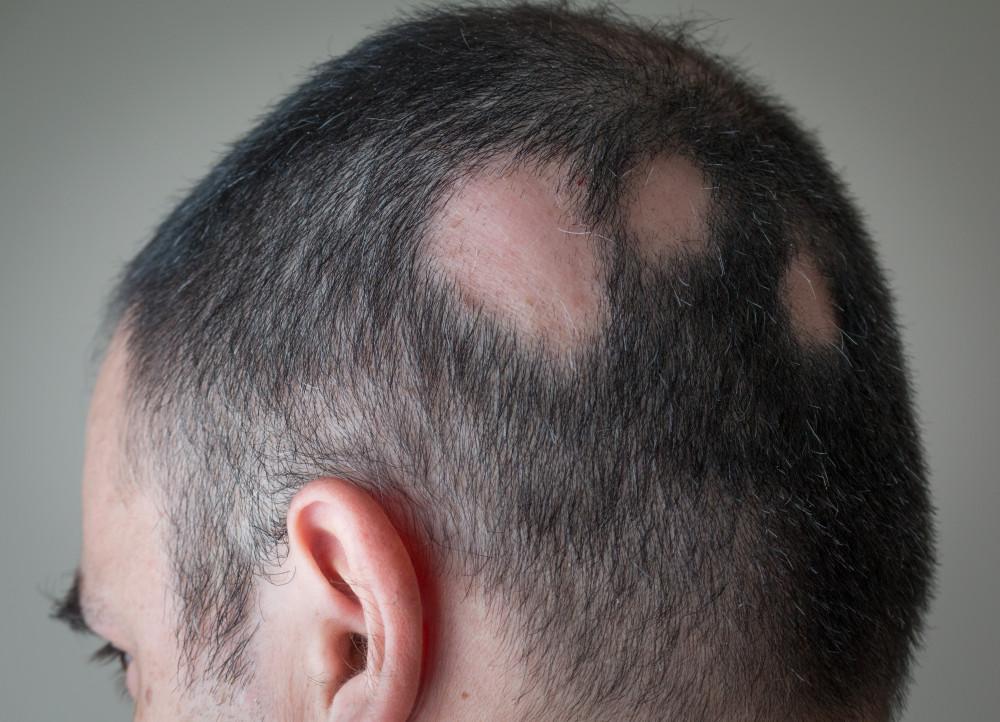 alopecia pikkelysömör kezelése