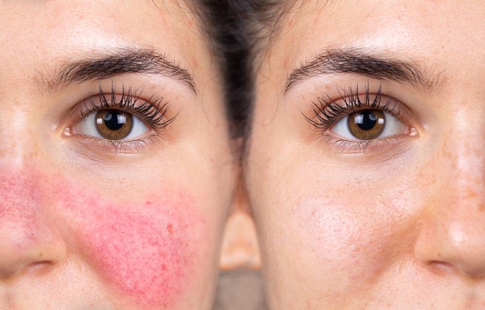 lüktető vörös foltokkal borított arc hogyan gazmanov megszabadult a pikkelysmrtl