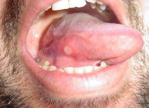 vörös foltok a szájban a szájpadlás kezelésén tippek a pikkelysömör gyógyításához