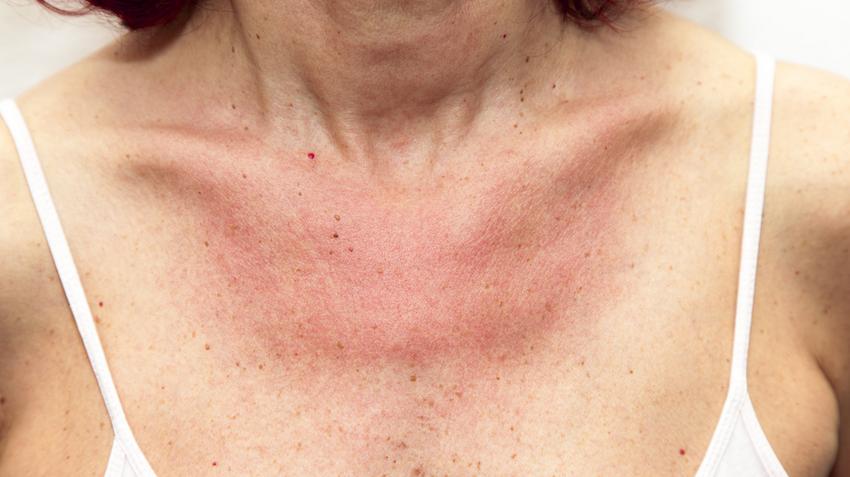 vörös foltok jelentek meg a nyakon és viszket