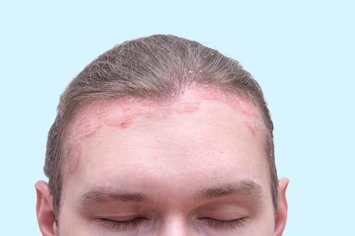 arc pszoriázis kezelése varázslók pikkelysömörének kezelése