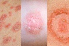 vörös foltok a bőrön HIV-vel