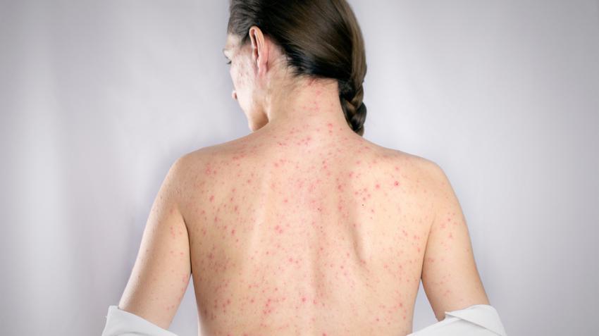 vörös foltok jelennek meg a testen viszket és megduzzadnak pikkelysömör tünetei és a kezelés megelőzése fotó