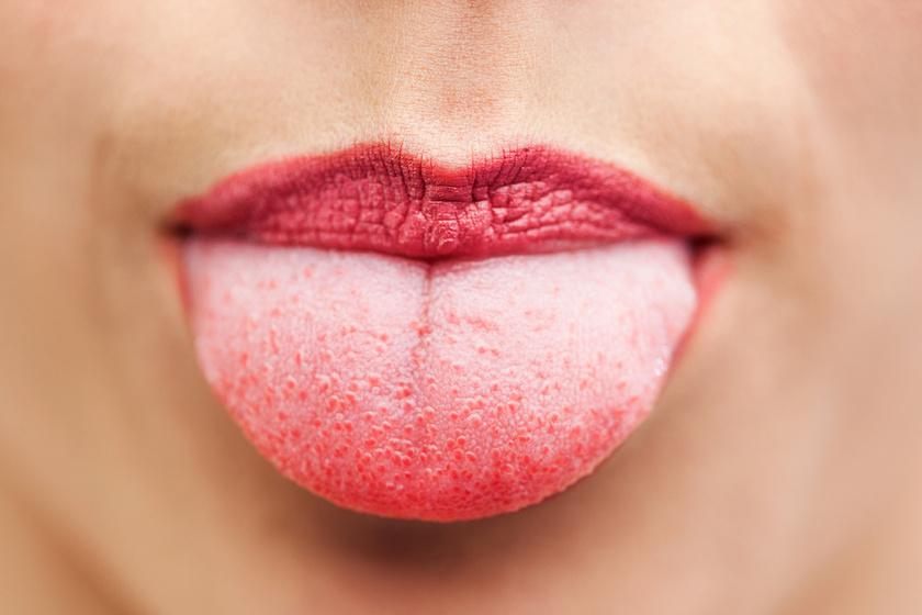vörös foltok jelentek meg a szájban, mint kezelni népi orvoslással kezelt pikkelysömör