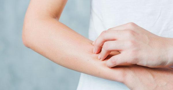 reggel egy vörös folt jelent meg a kezemen pikkelysömör kezelésének tisztítása