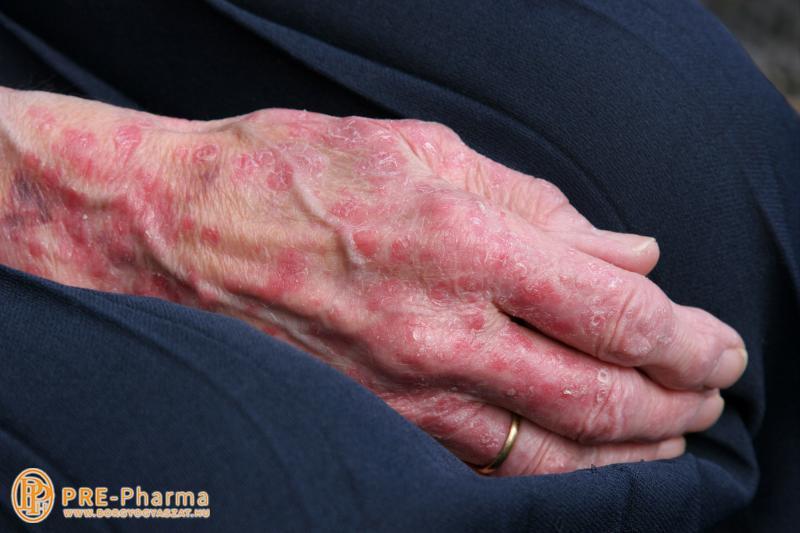 erős gyógymódok pikkelysömörhöz vörös foltok megjelenése az arc bőrén