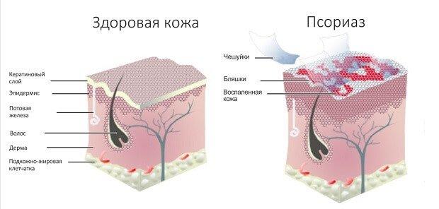 nyelv pikkelysömör kezelése hogyan lehet otthon eltávolítani a vörös foltokat az arcról