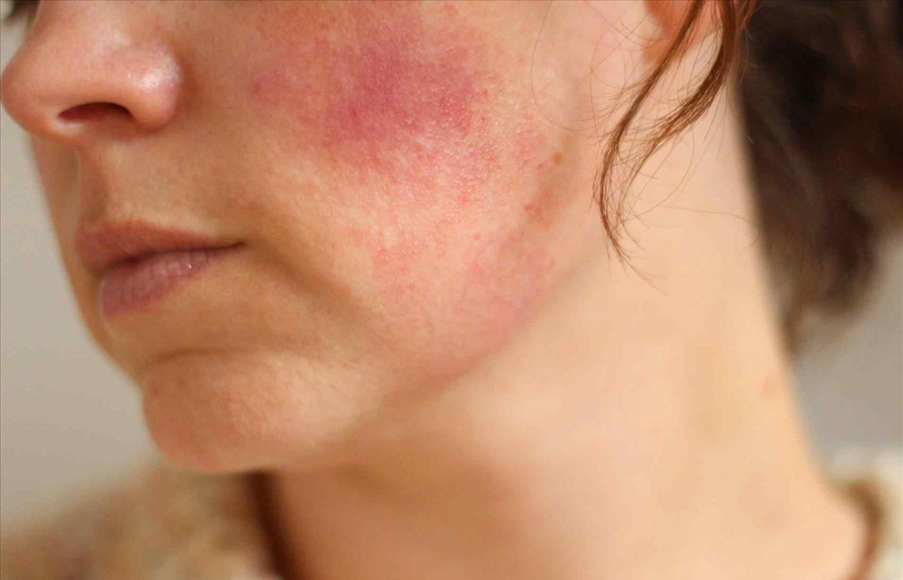 hogyan lehet gyorsan eltávolítani a vörös foltokat az arcról vörös foltok és viszketés az egész testen
