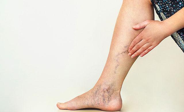 a lábán egy vörös folt a vénán
