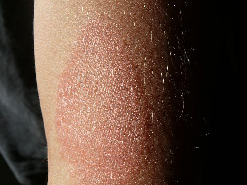 vörös pikkelyes foltok a láb bőrén