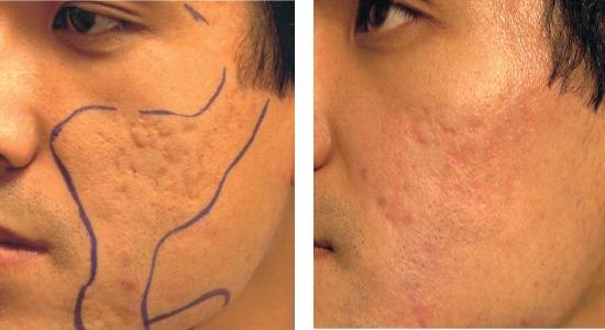 amikor megvakargatja a bőrét, vörös foltok jelennek meg a pikkelysömör kezelésének megelőzése