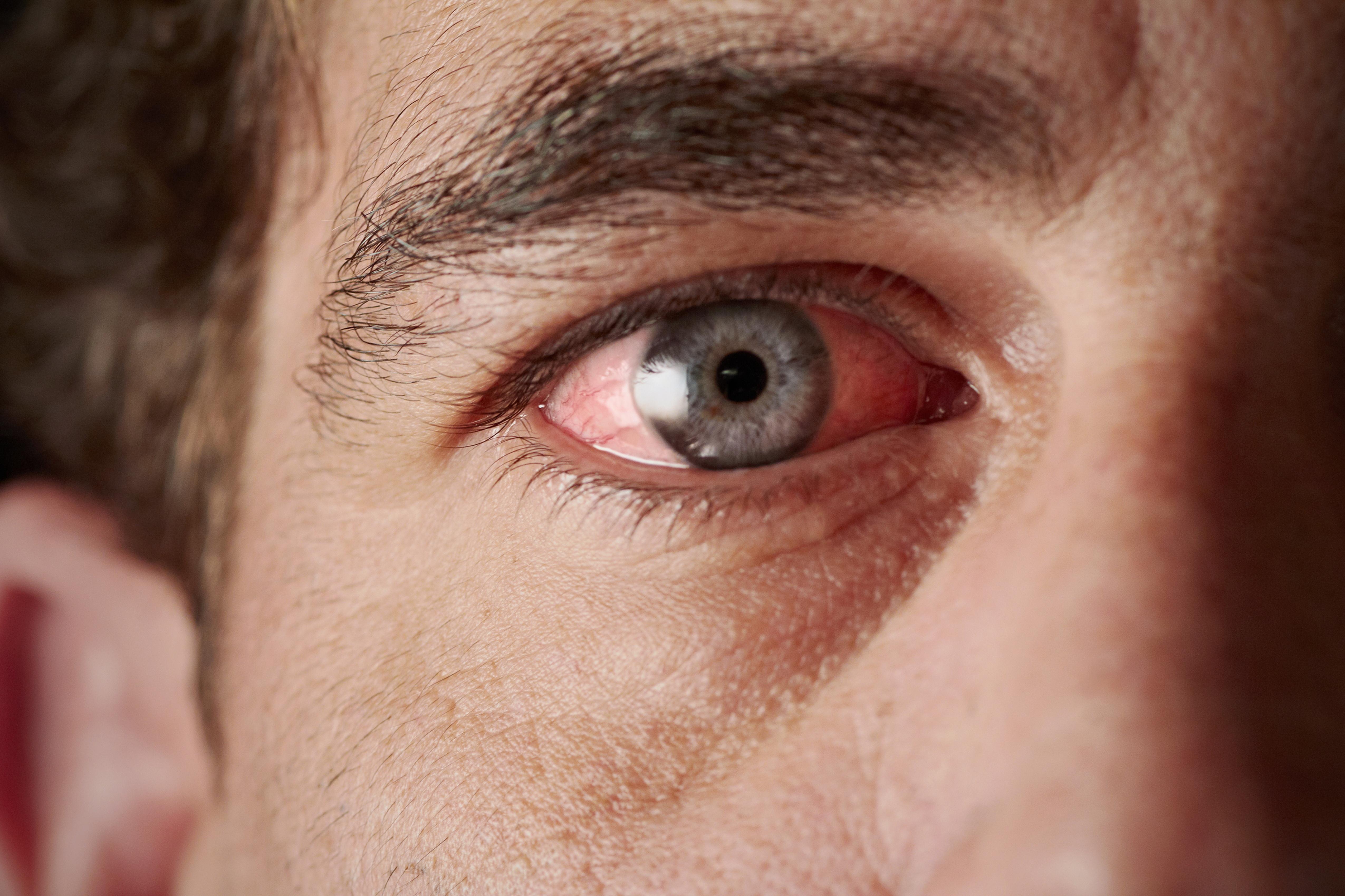 a szem alatt a vörös folt leválik, mint elkenődik víz után vörös foltok jelennek meg a kezeken