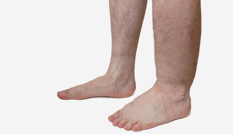 vörös és forró folt a lábán