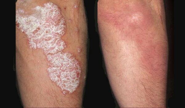 terjedelmes vörös folt a bőrön pikkelysömör kezelése nyári forma