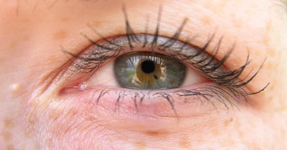 a szem alatt a vörös folt leválik, mint elkenődik vörös foltok pikkelyesedéssel a testen