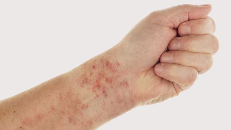 antibiotikum a pikkelysmr kezelsben világos folt vörös peremmel a bőrön