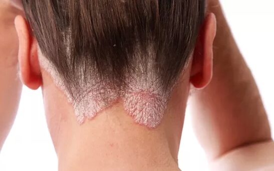 Nunisi pikkelysömör kezelése vörös foltok hólyagokkal a testen hogyan kell kezelni