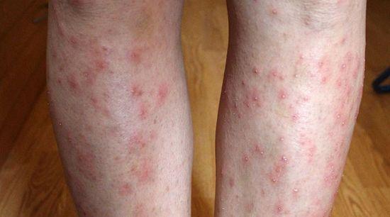 borított lábak vörös foltokkal és viszketéssel