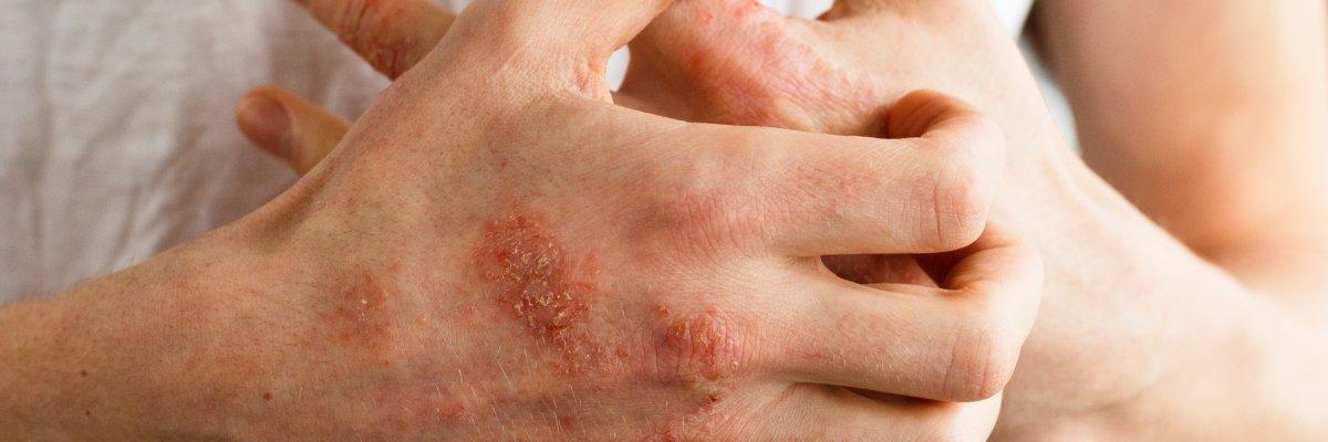 vörös foltok a lábakon zuzmókezelés galavitis a pikkelysmr kezelsben