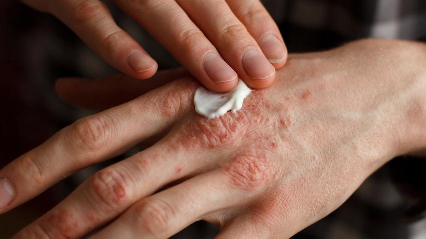 élő és holt víz a pikkelysömör kezelésében vörös foltok a tenyéren a bőr alatt