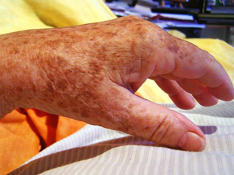 mit mondanak a kezeken lévő piros foltok feverfew pikkelysömör kezelése