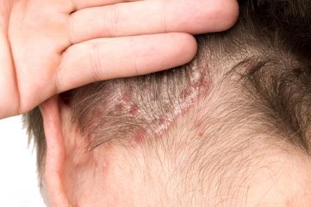 hogyan kezeljük a fejbőrt pikkelysömörrel pikkelysömör mész kezelése