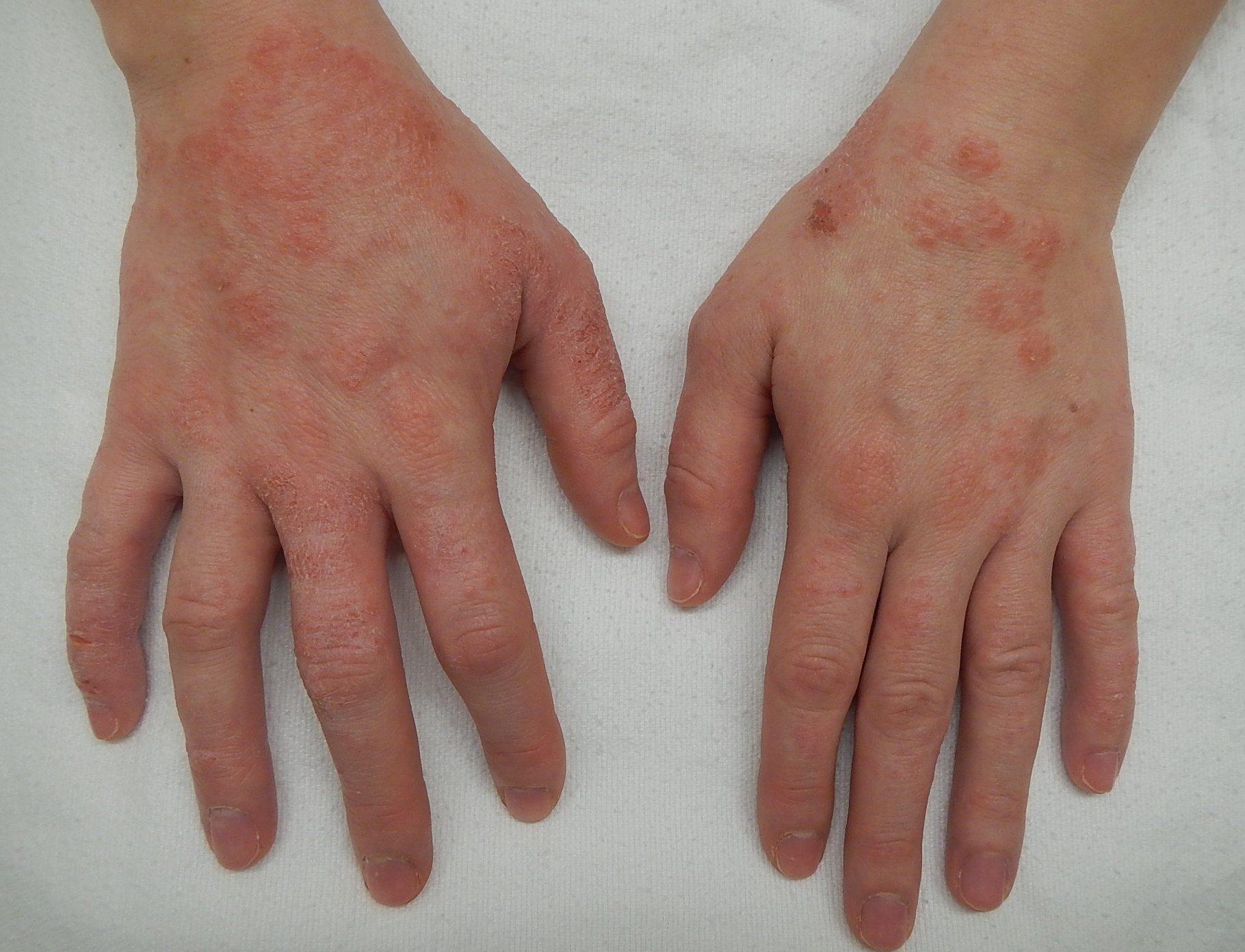 miért vannak vörös foltok az ujjakon