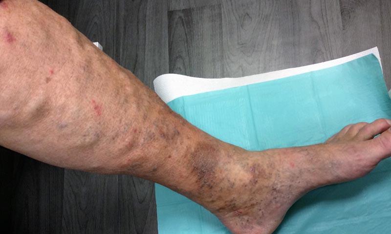 vörös foltok és fájdalom a lábakban hogyan lehet sminkkel elrejteni a vörös foltokat az arcon