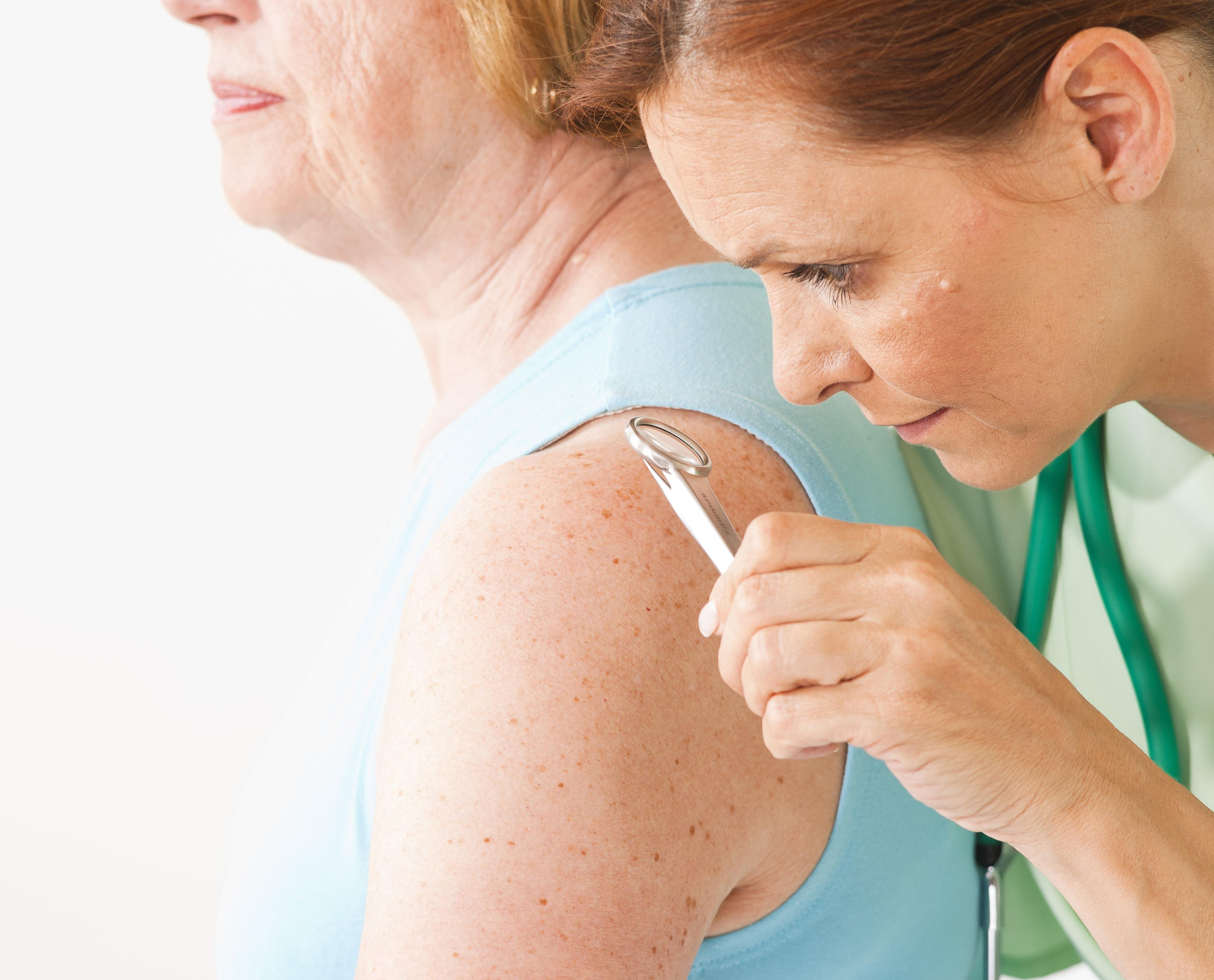 pikkelysömör hogyan kell kezelni a guttate pikkelysömörét pikkelysömör kezelése orális