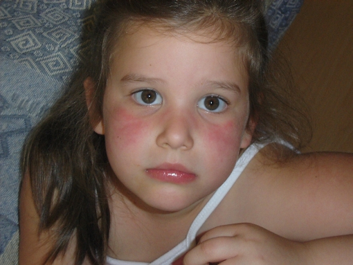 arc hegek és vörös foltok ellen DIY pikkelysömör lámpa