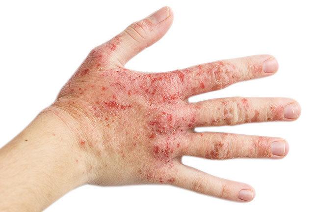 a tenyéren lévő bőr alatt vörös foltok viszketnek vörös száraz foltok a bőrön fotó