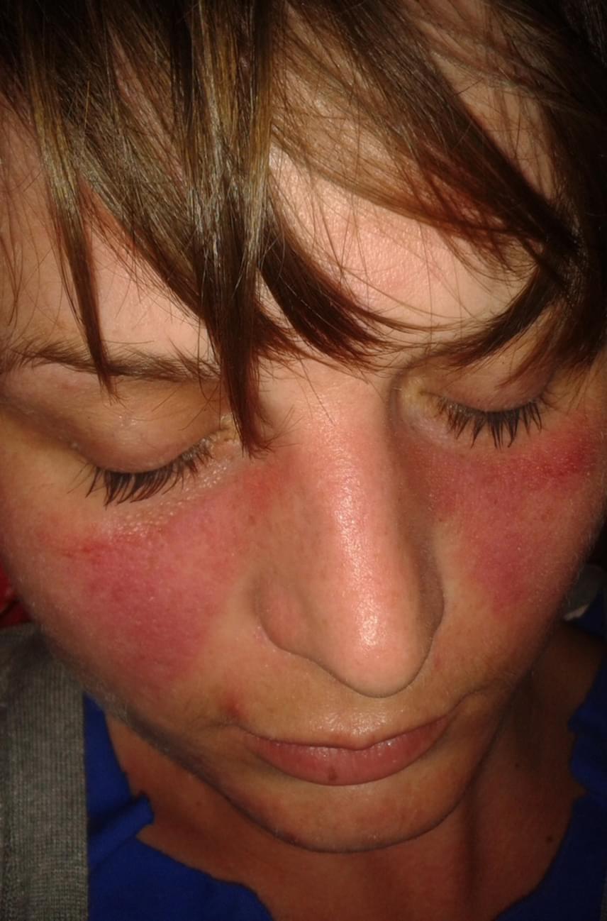domború vörös folt az arcon