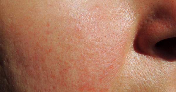 vörös foltok megjelenése az arc bőrén vörös foltok a lábakon hosszú séta után