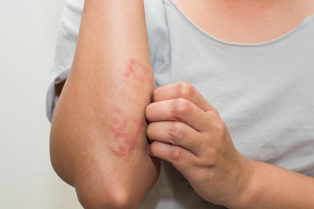 pikkelysömör tünetei és a kezelés megelőzése fotó víz után vörös foltok jelennek meg az arcon