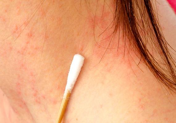 apró vörös foltok az arcon pikkelyesek vörös foltok az arcon a pattanások kezelése után