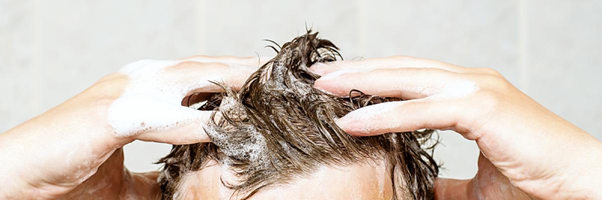 pikkelysömör a fején fotó a kezelés kezdeti szakasza vörös foltok az arcon jelentkező sebek után