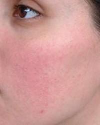 vörös foltok az arcon hővel pikkelysömör a fejn hogyan kell kezelni vélemények népi gyógymódok