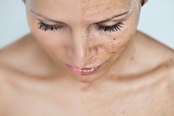 az aszpirinnel pikkelysömör gyógyítható pikkelysömör az arcon fotó és kezelés