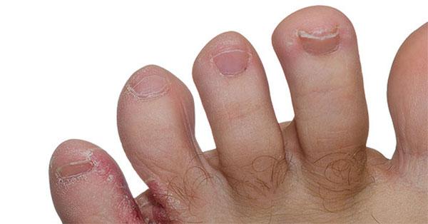a lábán vörös durva folt, mint kezelni
