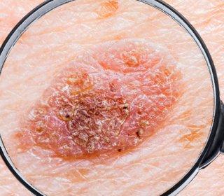 Tech: Új hatásos gyógyszerek a pikkelysömör ellen | finezza.hu