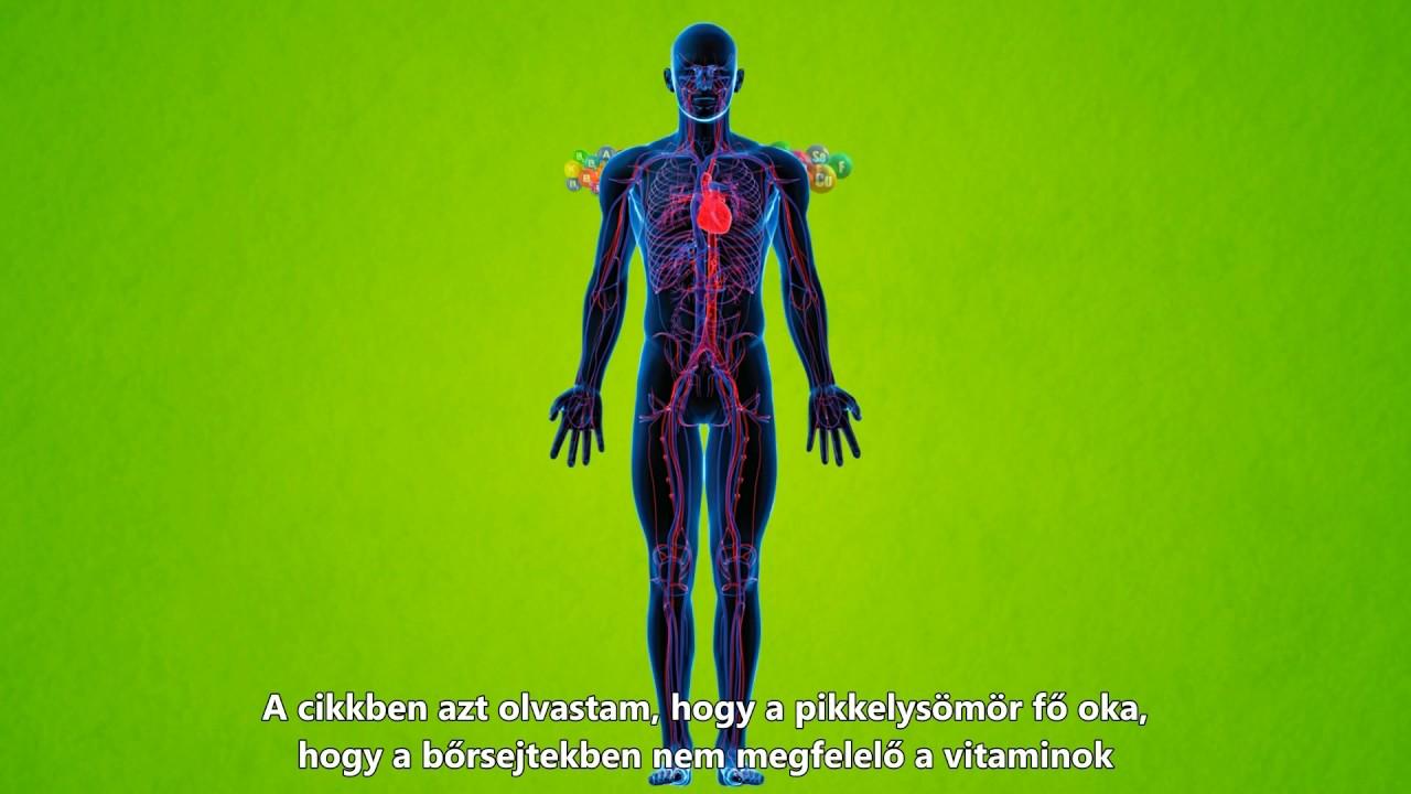 hogyan kezeljük a fej és a test pikkelysömörét népi gyógymódokkal