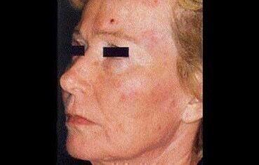 vörös foltok az arcon bőrrákkal