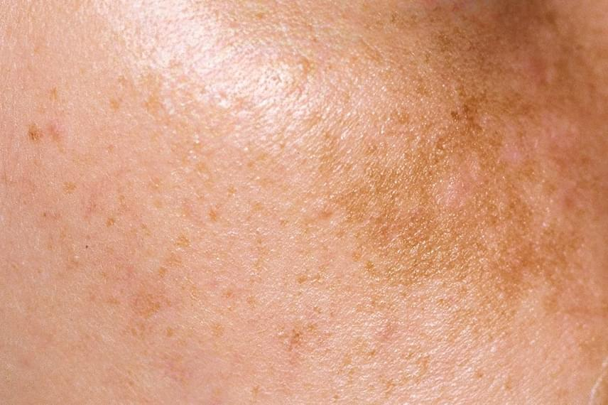 vörös foltok az arcon a napfényről hagyományos módszerek a pikkelysömör kezelésére az arcon