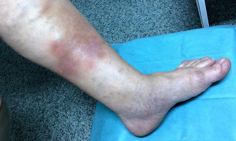 piros foltok a jobb lábon mi ez hogyan kezeljük a pikkelysömör fején propolisz