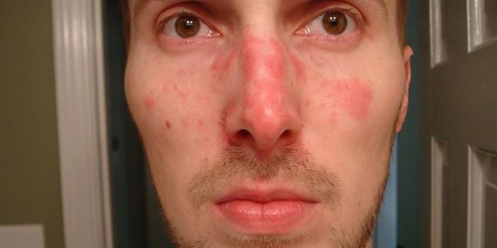vörös pikkelyes foltok egy felnőtt ember arcán a pikkelysömör kezelésének módszerei külföldön